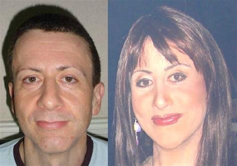 mtf ffs facial feminization surgery before and after results of facial feminisation surgery a photo on flickriver