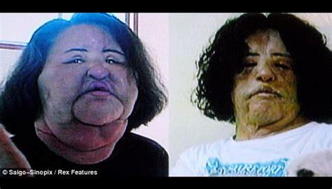 Minyak Goreng Hari Ini wanita ini suntik minyak goreng ke wajahnya foto tempo co