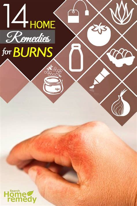 best 25 burns remedy ideas on burn relief