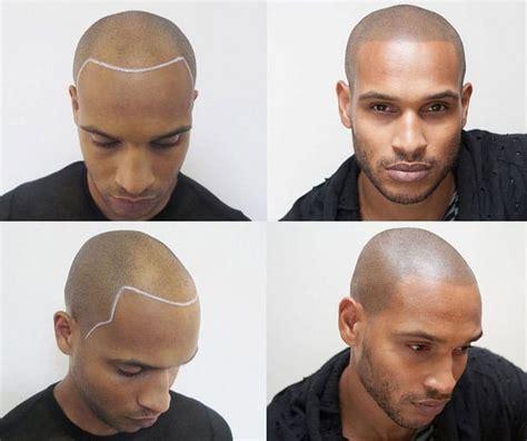 hairline tattoo hair scalp micropigmentation