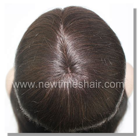 latest hair replacement 2015 hair replacement for women