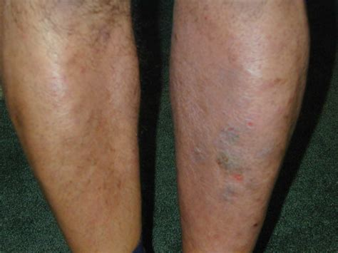 Fungus In Stool Treatment by Rash Yeast Treatment Yeast Infection Tips