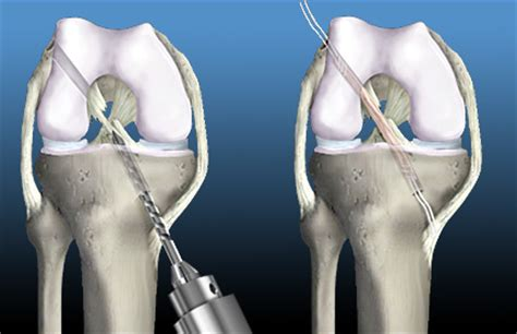 overview of allograft hamstring acl