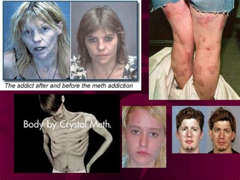 Do Toddlers Exposed To Meth Detox by Quot Meth Quot For