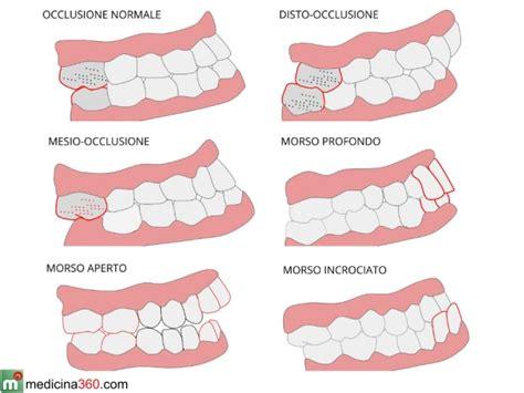 dente giudizio mal di testa malocclusione dentale o mandibolare rimedi conseguenze e