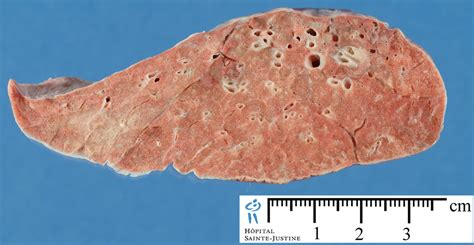 pathological lung sections pathological lung sections 28 images gross