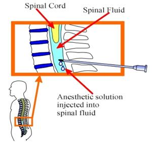 spinal block for c section side effects the different kinds of anesthesia patient education