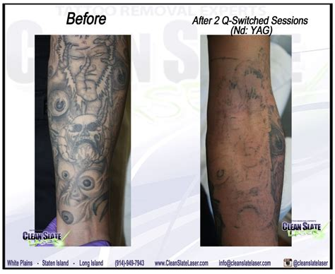 tattoo removal york clean slate laser removal manhattan 25 photos