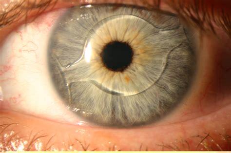 dictionary of ophthalmology praxis zeitz franko zeitz