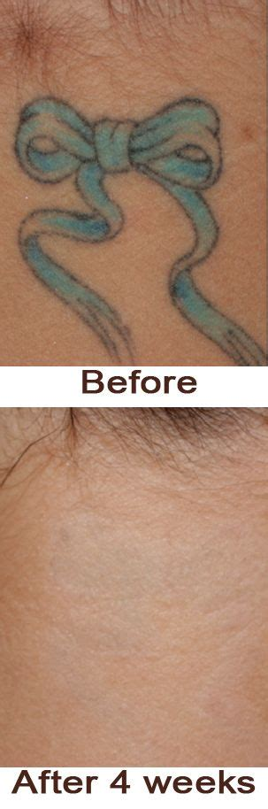 where can i get tattoo removal cream after 4 weeks lemon this ingredient can take it