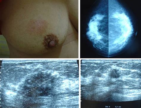 lump on s chest meridian disharmonies in with malignant breast lumps e journal of traditional