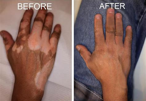 vitiligo tattoo monobenzone health blogs