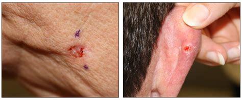 genetics  skin cancer pdqhealth professional version