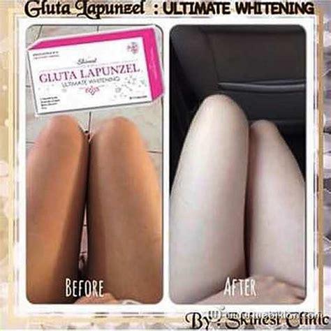 Dan Fungsi Gluta Panacea distributor gluta lapunzel skinest clinic beda gluta
