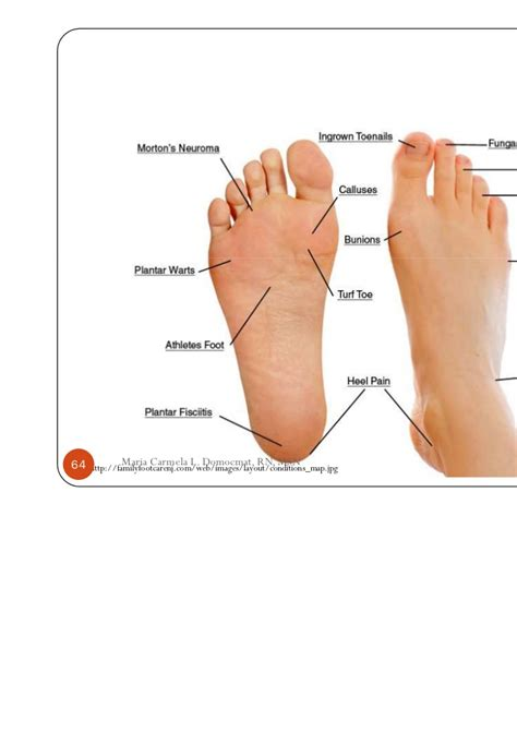 toe layout meaning musculoskeletal disorders part 1