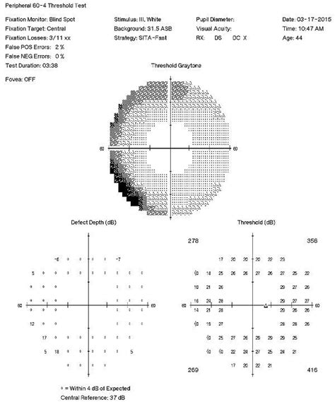 pattern appearance vep elevated tension open angle glaucoma with isolated check