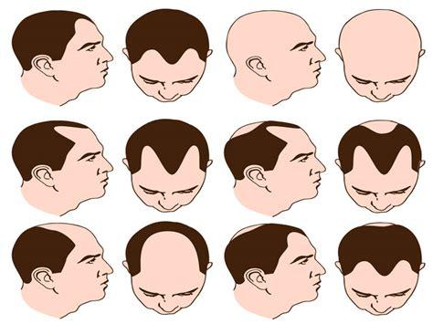 male pattern baldness exles male pattern baldness newhairstylesformen2014 com