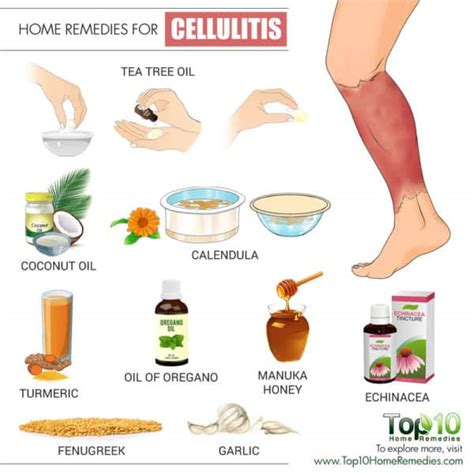 home remedies for cellulitis top 10 home remedies