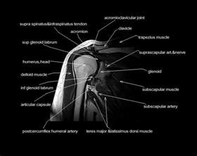 Cross Sectional Anatomy Study Guide by 52 Best Images About Mri Anatomy On And