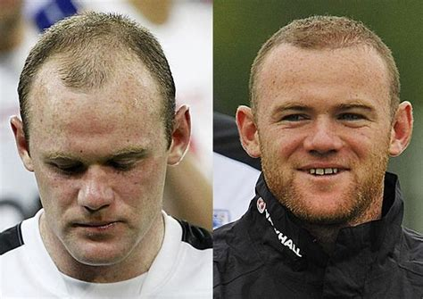 best haircuts for misshapen heads robbie williams and wayne rooney hair transplants the