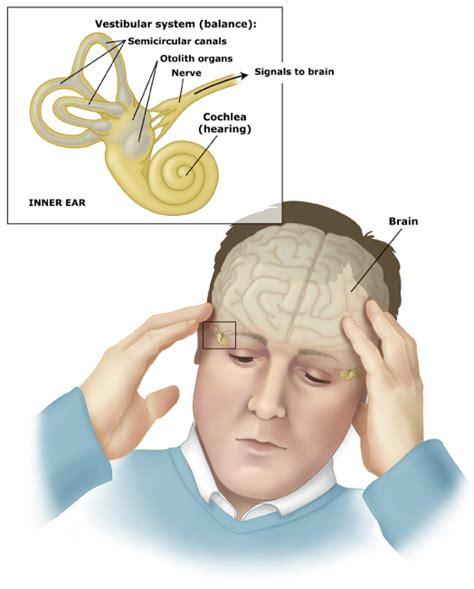 dizziness exercises inner ear vertigo and imbalance emedmd