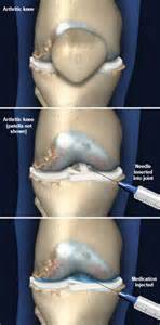 Knee Joint Injection Procedure » Home Design 2017