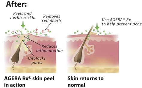 cystic acne diagram cystic acne pictures posters news and on your