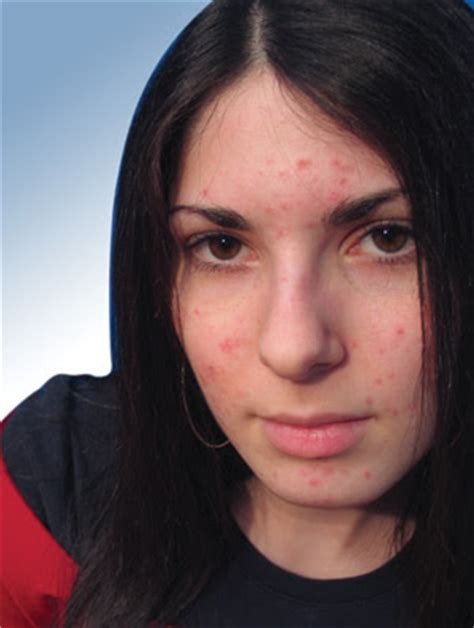 Acne Lamour acn 233 chez l adulte beautylicieusebeautylicieuse