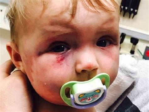 Mother Walks Free After Allegedly Hitting Baby Daughter