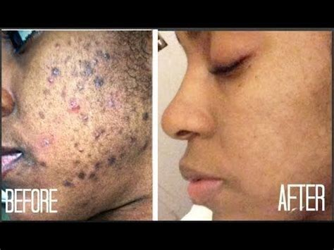 hide hair scar marks anti ageing wrinkles stretch marks pimples scars acne