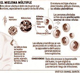 mieloma de cadenas ligeras pdf mieloma m 250 ltiple mieloma de c 233 lulas plasm 225 ticas