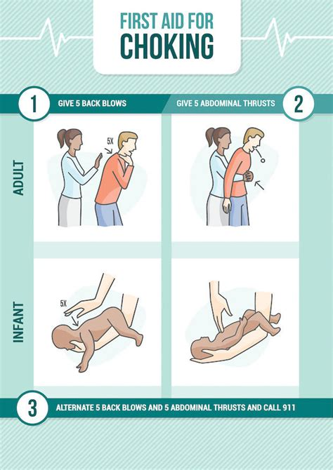 how to do the heimlich on a dr henry heimlich s battle with the cross his namesake maneuver