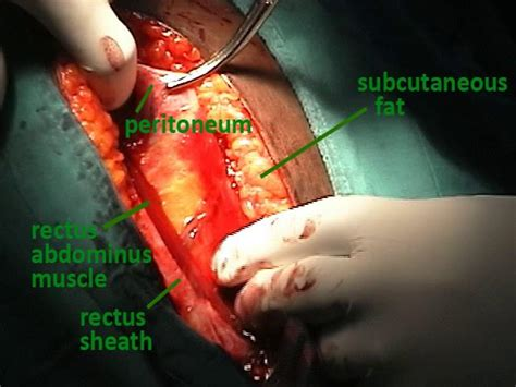 c section incision opening hysterectomy scar images femalecelebrity