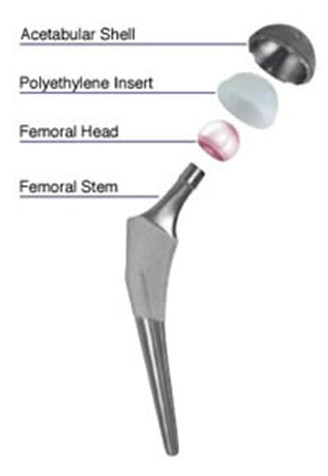 patient education: hip implants with the potential to be