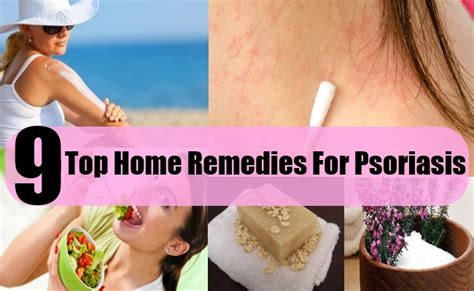9 top home remedies for psoriasis search home remedy