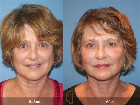fat grafting plastic surgery before after fat grafting to face 12 orange county