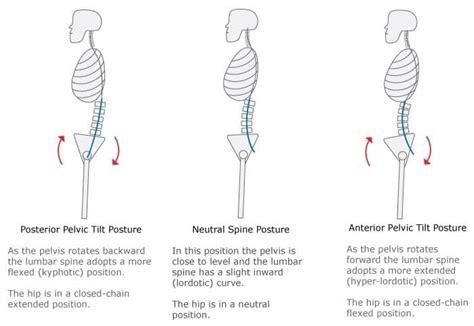 minute anterior pelvic tilt exercise program precisionmovementcoach