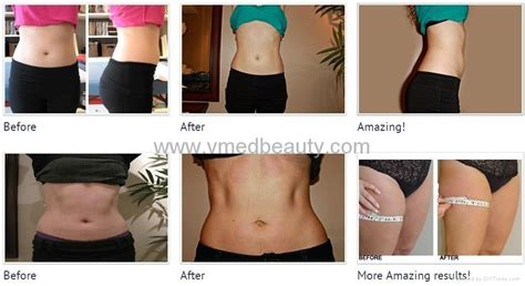 coolsculpting diy do it your self