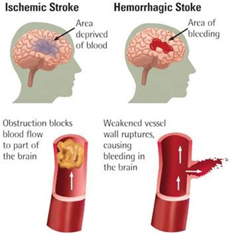 dysphagia.ie | dysphagia and malnutrition in stroke patients