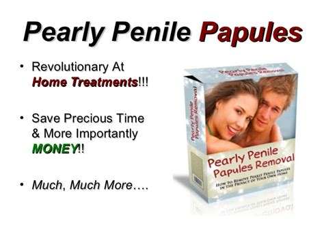 pearly penile papules removal how to remove pearly panile