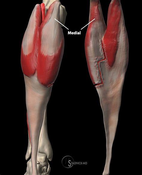 freehand calf muscle skin tear kt tape calf