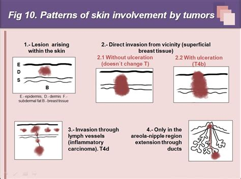 pattern analysis of tumors of epidermis and its appendages ecr 2013 c 0864 superficial breast lesions a