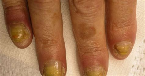 split nail bed what causes finger nails to split awesome nail