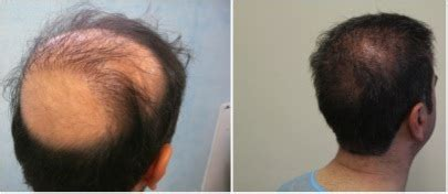 hairstyles for thin hair in the crown region crown hair transplant info patient photos
