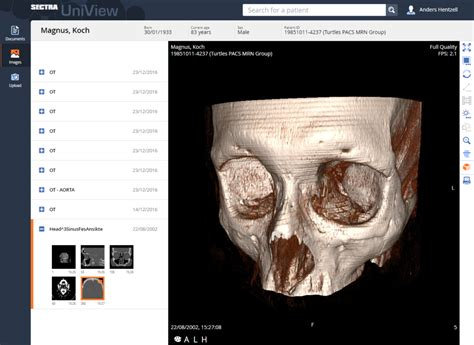Sectra Image Viewer sectra uniview universal viewer for enterprise imaging