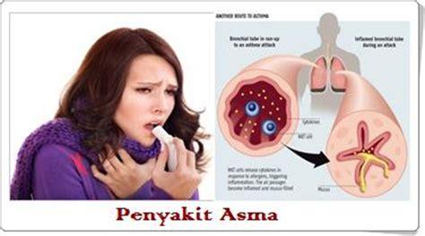 Obat Buat Batuk Kronis jual obat asma surabaya sidoarjo agen grosir obat asma
