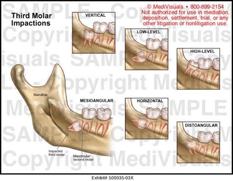 Obat Asam Lambung Jitu sakit gigi terasa nyeri disertai bengkak alodokter