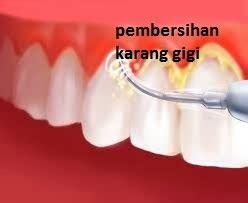 Cairan Pembersih Karang Gigi Plak Gigi Dan Karang Gigi