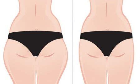 alimentos para engordar piernas como eliminar el dolor de rodilla y articulaciones en un