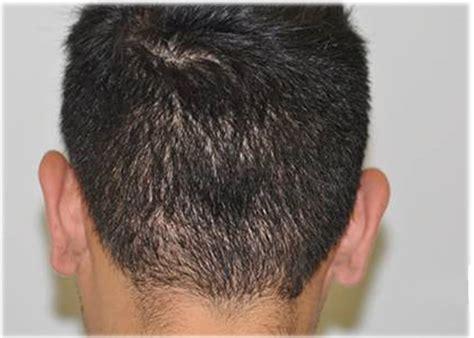 is hair transplant safe hair transplant houston hairstylegalleries com